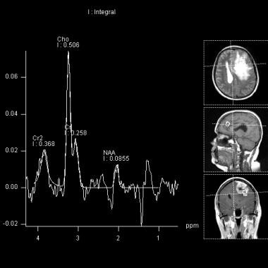 This MR spectroscopy of the previous MRI demonstra