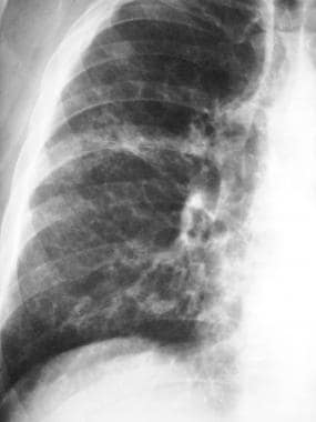 Magnified view of the right lung base shows reticu