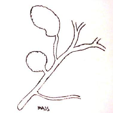 Type II choledochal cyst.