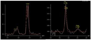 Proton magnetic resonance spectrum in a normal vox
