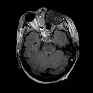 MRI (1.5 Tesla) of the same patient (56-year-old w