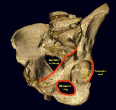 Left obturator oblique view of the pelvis. The lef