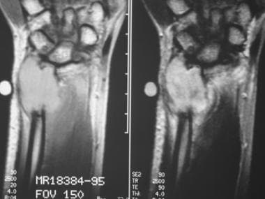T2-weighted coronal MRIs of the wrist show a giant