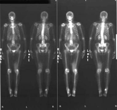 Technetium-99m bone scintigram (delayed phase) rev
