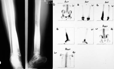 Osteomyelitis, chronic. Radiograph (left) and isot