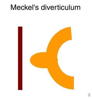Diagram of a Meckel diverticulum.