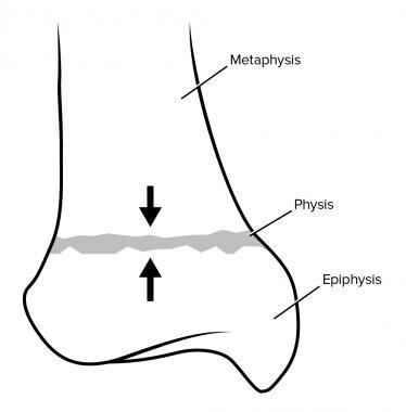 Salter-Harris fracture type V