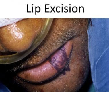 Planned wedge excision of lower lip.