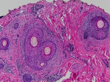 Horizontal section shows perifollicular fibrosis c