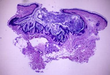 Hematoxylin and eosin stain. Original magnificatio