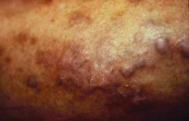 Pseudolymphomatous drug eruption due to captopril,