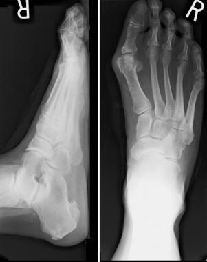 Bunion deformity with minimal joint destruction.