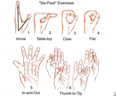 """""""Six-pack"""" exercises as Palmer describes, are perf"""