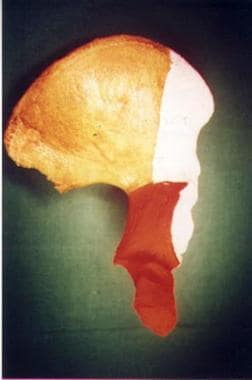 Columns of the acetabulum, iliac view.