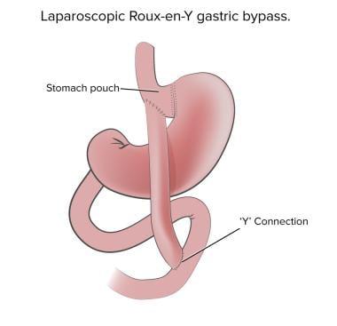 Laparoscopic Roux-en-Y gastric bypass.
