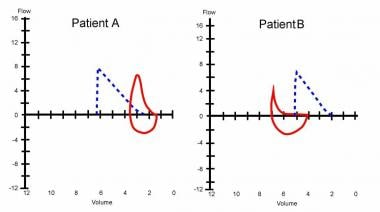 Flow volume curve of a patient with emphysema show