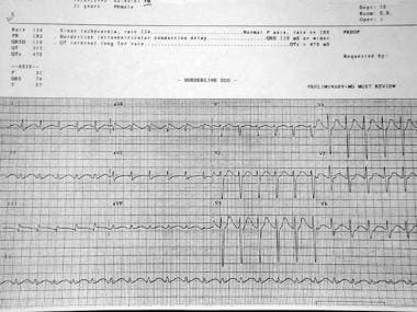 Toxicity, antidepressant. ECG shows the terminal R