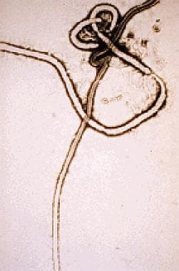 Ebola virus. Electron micrograph courtesy of the C