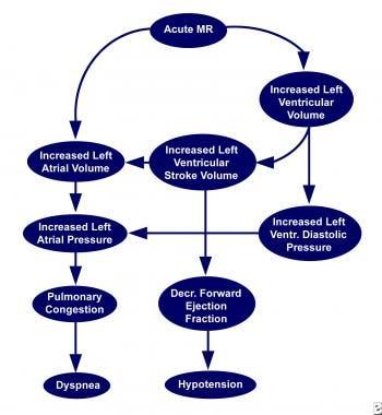 Acute stage of mitral regurgitation (MR).
