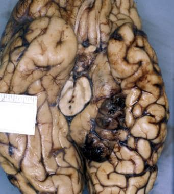 Left tentorial herniation with hemorrhage and necr