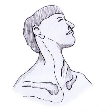 Anterior approach to Pancoast tumor. Neck incision