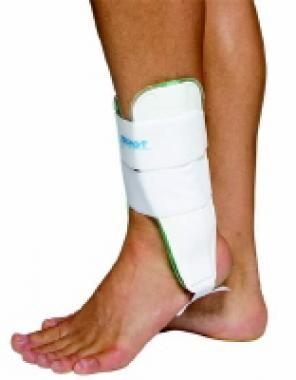 Premanufactured splint. Courtesy of DJO Global.