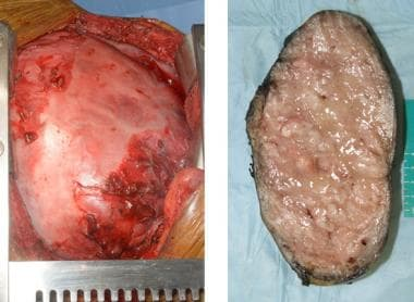 Left image. Large solitary fibrous tumor fills the