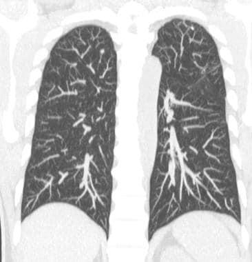 Coronal maximum-intensity projection CT scan (8 mm