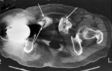 Axial CT of the pubis reveals insufficiency fractu