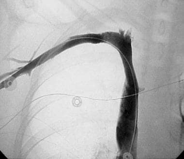 A venogram obtained in a 20-year-old woman with ri