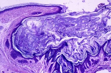 Image shows an epidermal lining that is atrophic n