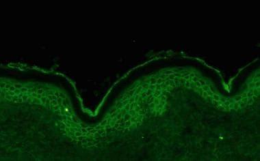 Direct immunofluorescence showing intercellular im