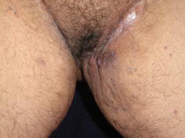 Close-up view of inguinal hidradenitis suppurativa