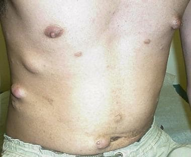 Subcutaneous and cutaneous lesions in a young man