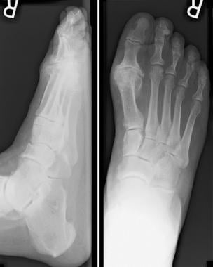 Bunion deformity with significant joint destructio