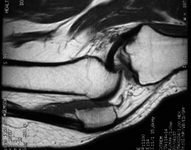 Sagittal T1-weighted MRI of knee in patient with s