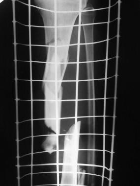 Clinical Case 1. Preoperative radiograph of the tr