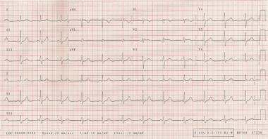 ECG demonstrating a short PR interval of approxima