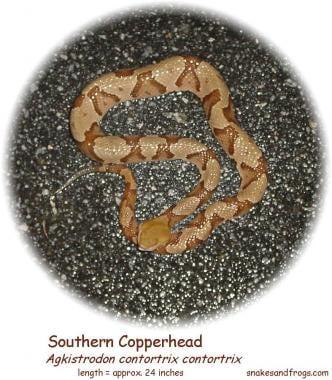 Snakebite. Southern Copperhead snake, from snakesa