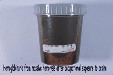 Black water urine from a patient with massive hemo