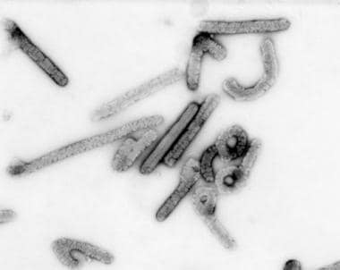 Marburg virus. Negative stain image courtesy of th