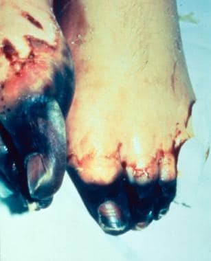 Acral necrosis of the toes and residual ecchymoses
