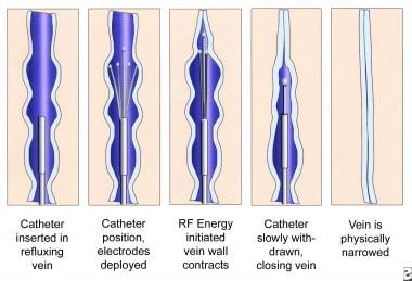 Schematic images of the process of radiofrequency