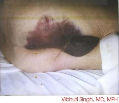 Ecchymosis following intravenous anticoagulation w
