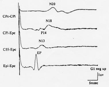 Normal median nerve somatosensory evoked potential