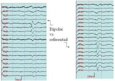Sharp wave, left temporal region. The sharp wave i