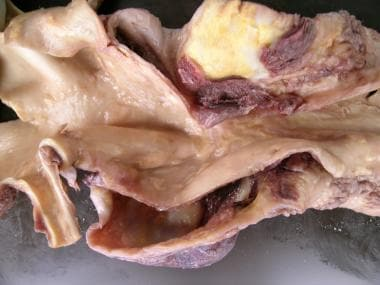 Chronic aortic dissection in a 49-year-old man wit