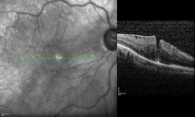 Epimacular membrane. Following pneumatic retinopex