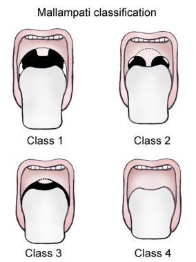 Mallampati classification.
