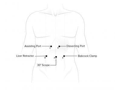 Port placement for laparoscopic Nissen fundoplicat